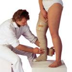 Bandagierung Lymphödem - Therapie, Behandlungen